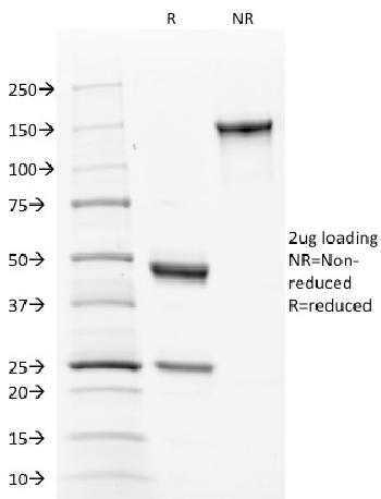 Fig. 3: SDS-PAGE Analysis Purified Calnexin Mouse Monoclonal Antibody (CANX/1543). Confirmation of Integrity and Purity of Antibody.