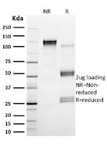 Fig. 3: SDS-PAGE Analysis Purified Calpain 1 Mouse Monoclonal Antibody (CAPN1/1530). Confirmation of Purity and Integrity of Antibody.