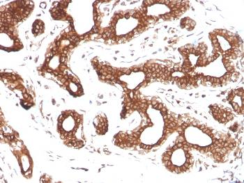 Fig. 3: Formalin-fixed, paraffin-embedded human Breast Carcinoma stained with Calpastatin Mouse Monoclonal Antibody (CAST/1550).
