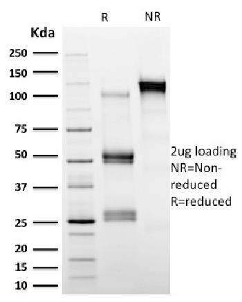 Fig. 6: SDS-PAGE Analysis Purified Calpastatin Mouse Monoclonal Antibody (CAST/1550). Confirmation of Integrity and Purity of Antibody.