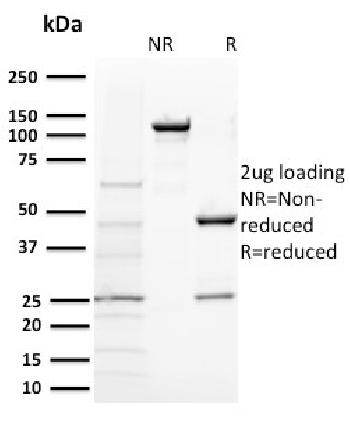 Fig. 1: SDS-PAGE Analysis Purified BAP1 Mouse Monoclonal Antibody (BAP1/2431). Confirmation of Purity and Integrity of Antibody.