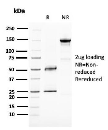 Fig. 1: SDS-PAGE Analysis Purified BAP1 Mouse Monoclonal Antibody (BAP1/2667). Confirmation of Purity and Integrity of Antibody.