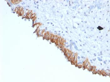 Fig. 3: Formalin-fixed, paraffin-embedded human Bladder Carcinoma stained with MAML2 Monoclonal Antibody (MAML2/1302).