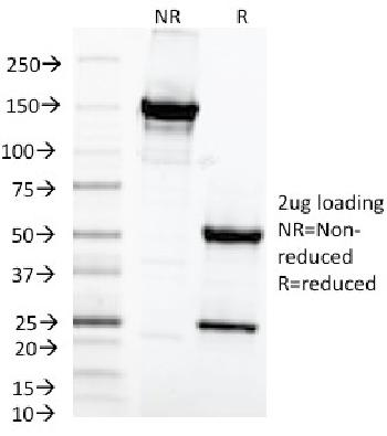 Fig. 5: SDS-PAGE Analysis Purified MAML2 Monoclonal Antibody (MAML2/1302). Confirmation of Purity and Integrity of Antibody.