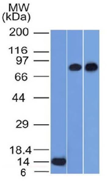 Fig. 1: Western Blot of Recombinant, PC3 and HeLa cell lysates using p63 Mouse Monoclonal Antibody (TP63/1786).