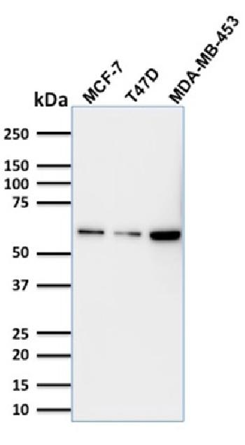 Fig. 2: Western Blot Analysis MCF-7; T47D and MDA-MB453 cell lysate using p63 Mouse Monoclonal Antibody (TP63/1786).