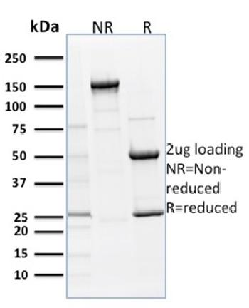 Fig. 3: SDS-PAGE Analysis Purified p63 Mouse Monoclonal Antibody (TP63/1786). Confirmation of Purity and Integrity of Antibody.