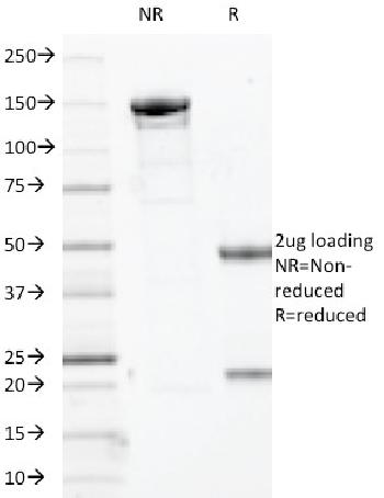 Fig. 2: SDS-PAGE Analysis Purified p63 Mouse Monoclonal Antibody (TP63/2427). Confirmation of Integrity and Purity of Antibody.