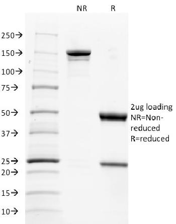 Fig. 3: SDS-PAGE Analysis Purified CD137L-Monospecific Mouse Monoclonal Antibody (CD137L/1547). Confirmation of Purity and Integrity of Antibody.