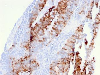 Fig. 1: Formalin-fixed, paraffin-embedded human colon carcinoma stained with DR5 Mouse Monoclonal Antibody (DR5/3381).