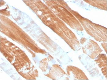 Fig. 1: Formalin-fixed, paraffin-embedded human Skeletal Muscle stained with Sarcomeric Actinin Alpha 2 Mouse Monoclonal Antibody (ACTN2/3291).