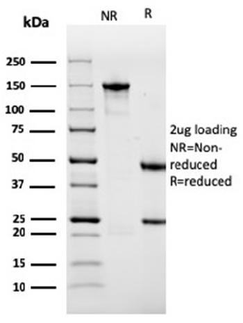 Fig. 4: SDS-PAGE Analysis Purified Sarcomeric Actinin Alpha 2 Mouse MAb (ACTN2/3291). Confirmation of Purity and Integrity of Antibody.
