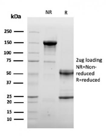Fig. 4: SDS-PAGE Analysis Purified ACTN2 Mouse Monoclonal Antibody (ACTN2/3292). Confirmation of Purity and Integrity of Antibody