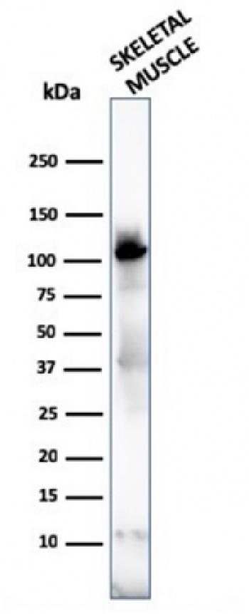 Fig. 5: Western Blot of human skeletal muscle tissue lysates using Sarcomeric Actinin Alpha 2 Mouse Monoclonal Antibody (ACTN2/3292).