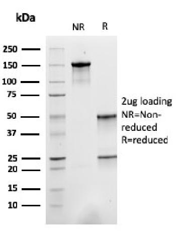 Fig. 4: SDS-PAGE Analysis Purified ACTN2 Mouse Monoclonal Antibody (ACTN2/3293). Confirmation of Purity and Integrity of Antibody.