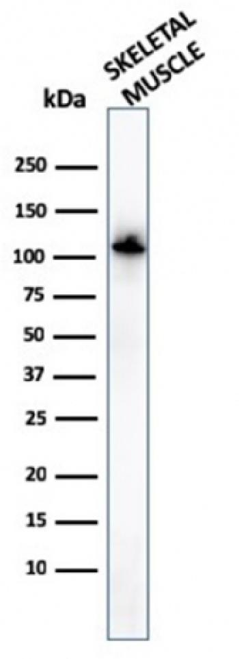 Fig. 5: Western Blot of human Skeletal muscle tissue lysates using Sarcomeric Actinin Alpha 2 Mouse Monoclonal Antibody (ACTN2/3294).