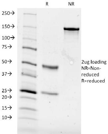 Fig. 1: SDS-PAGE Analysis Purified CD84 Mouse Monoclonal Antibody (153-4D9). Confirmation of Purity and Integrity of Antibody.