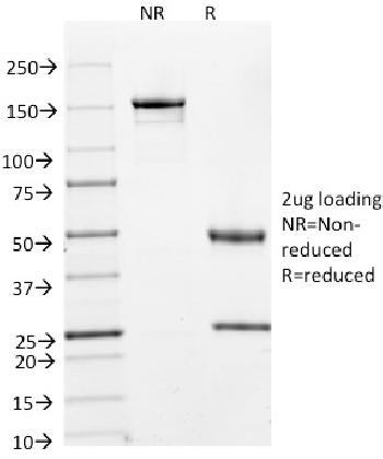 Anti-Cyclin A2 (S- & G2-phase Cyclin) Monoclonal Antibody(Clone: E67)
