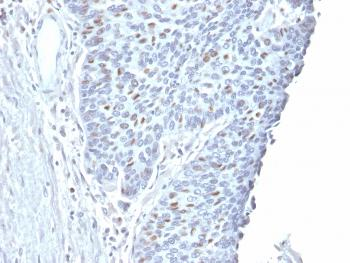 Fig. 2: Formalin-fixed, paraffin-embedded human Endometrial Carcinoma stained with Cyclin A2 Mouse Monoclonal Antibody (CCNA2/2333).