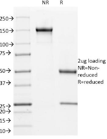 Fig. 1: SDS-PAGE Analysis Purified Cyclin B1 Mouse Monoclonal Antibody (V92.1). Confirmation of Integrity and Purity of Antibody.