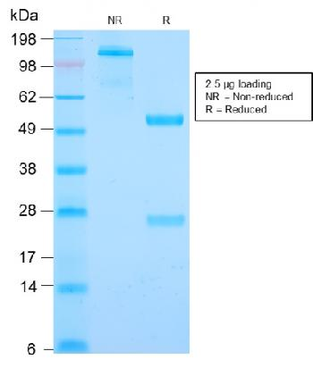 Anti-Cyclin B1 (G2- & M-phase Cyclin) Monoclonal Antibody(Clone: CCNB1/2978R)
