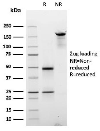 Fig. 1: SDS-PAGE Analysis Purified Cyclin D2 Mouse Monoclonal Antibody (CCND2/2620). Confirmation of Purity and Integrity of Antibody.