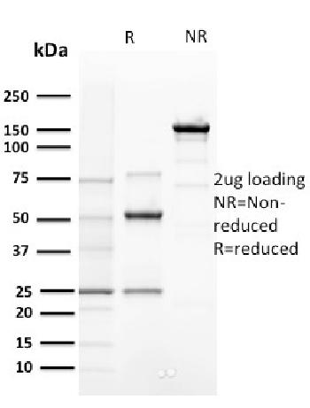 Fig. 3: SDS-PAGE Analysis Purified Cyclin E Mouse Monoclonal Antibody (CCNE1/2460). Confirmation of Purity and Integrity of Antibody.