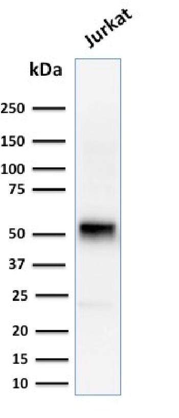 Fig. 4: Western Blot Analysis of human Jurkat cell lysate using Cyclin E Mouse Monoclonal Antibody (CCNE1/2460).