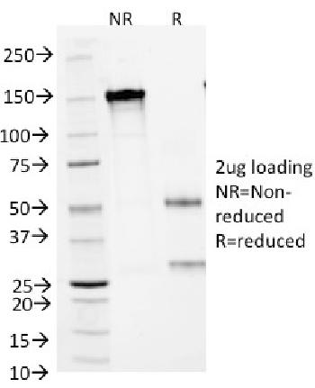 Anti-CD1a / HTA1 (Mature Langerhans Cells Marker) Monoclonal Antibody(Clone: 66IIC7)