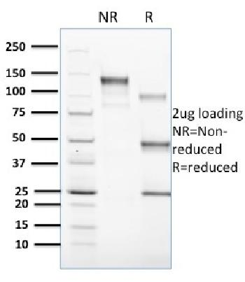 Fig. 1: SDS-PAGE Analysis Purified CD1c Mouse Monoclonal Antibody (CD1C/1603). Confirmation of Purity and Integrity of Antibody.