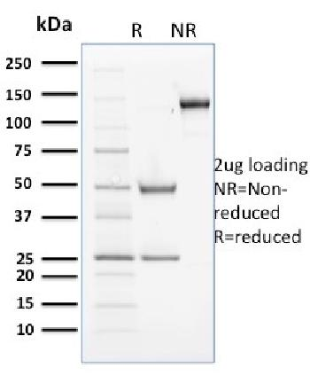 Fig. 1: SDS-PAGE Analysis Purified Cyclin B2 Mouse Monoclonal Antibody (X29.2). Confirmation of Purity and Integrity of Antibody.