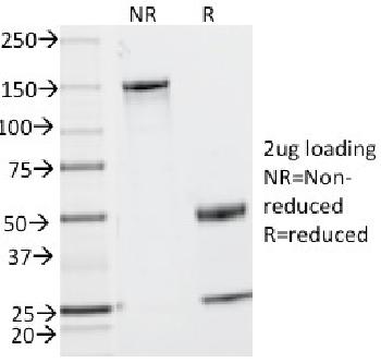 Fig. 1: SDS-PAGE Analysis Purified CD2 Mouse Monoclonal Antibody (UMCD2). Confirmation of Integrity and Purity of Antibody.
