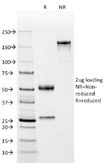 Fig. 1: SDS-PAGE Analysis Purified CD2 Mouse Monoclonal Antibody (BH1). Confirmation of Integrity and Purity of Antibody.