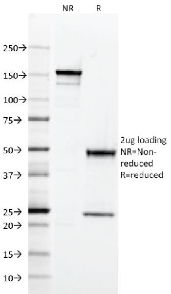 Fig. 1: SDS-PAGE Analysis Purified CD2 Mouse Monoclonal Antibody (RPA-2.10). Confirmation of Integrity and Purity of Antibody.