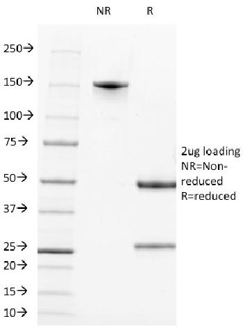Fig. 1: SDS-PAGE Analysis Purified CD2 Mouse Monoclonal Antibody (LFA2/600). Confirmation of Integrity and Purity of Antibody.