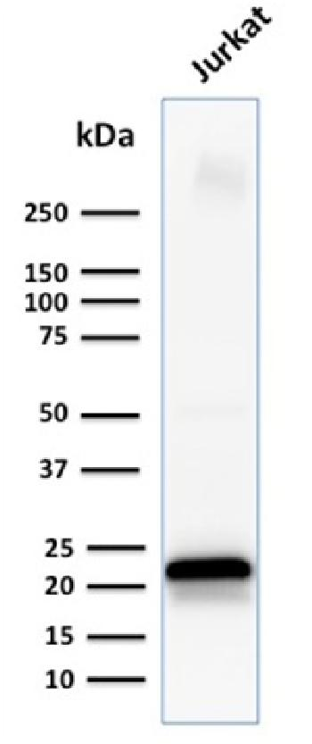 Fig. 2: Western Blot Analysis of human Jurkat cell lysate using CD3e Mouse Monoclonal Antibody (C3e/1931).