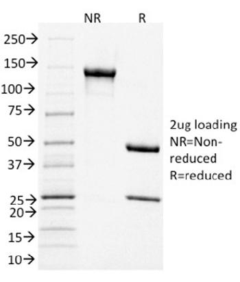 Fig. 3: SDS-PAGE Analysis Purified CD3e Mouse Monoclonal Antibody (C3e/1931). Confirmation of Integrity and Purity of Antibody.
