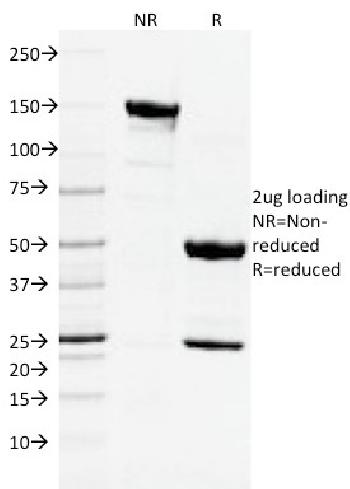 Fig. 2: SDS-PAGE Analysis Purified CD3e Mouse Monoclonal Antibody (C3e/2478). Confirmation of Purity and Integrity of Antibody.