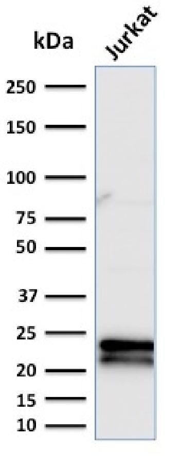 Fig. 1: Western Blot Analysis of Jurkat cell lysate using CD3e Mouse Monoclonal Antibody (C3e/2479).