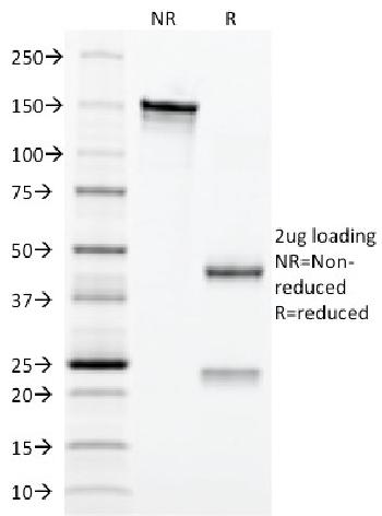 Fig. 2: SDS-PAGE Analysis Purified CD3e Mouse Monoclonal Antibody (C3e/2479). Confirmation of Integrity and Purity of Antibody.