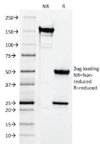 Fig. 3: SDS-PAGE Analysis Purified CD3e Mouse Monoclonal Antibody (CRIS-7). Confirmation of Integrity and Purity of Antibody.
