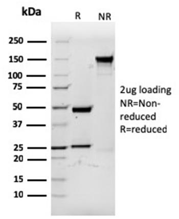 Fig. 2: SDS-PAGE Analysis Purified CD3eRecombinant Mouse Monoclonal Antibody (rC3e/1931). Confirmation of Purity and Integrity of Antibody.