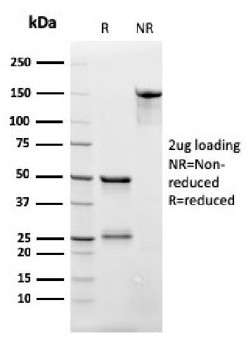 Fig. 1: SDS-PAGE Analysis Purified CD3e Recombinant Mouse Monoclonal Antibody (rC3e/2479). Confirmation of Integrity and Purity of Antibody.
