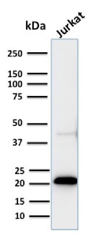 Fig. 1: Western Blot of recombinant CD3e and Jurkat cell lysate using CD3e Rabbit Recombinant Monoclonal Antibody (C3e/2858R).