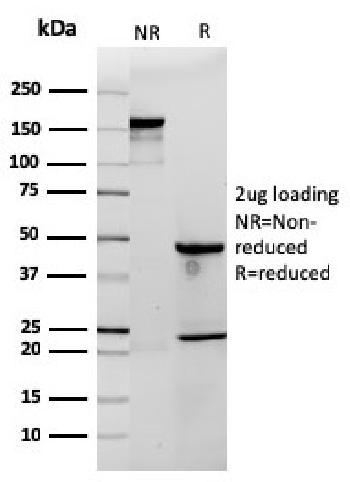 Fig. 2: SDS-PAGE Analysis Purified CD3e Rabbit Recombinant Monoclonal Antibody (C3e/2858R). Confirmation of Integrity and Purity of Antibody.