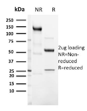 Fig. 2: SDS-PAGE Analysis Purified CD3e Rabbit Recombinant Monoclonal Antibody (C3e/3125R). Confirmation of Integrity and Purity of Antibody.