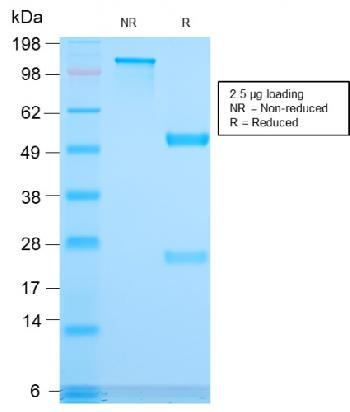 Fig. 2: SDS-PAGE Analysis Purified CD3e Recombinant Rabbit Monoclonal Antibody (C3e/3171R). Confirmation of Integrity and Purity of Antibody.