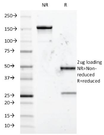 Fig. 1: SDS-PAGE Analysis Purified CD5 Mouse Monoclonal Antibody (Clone B-B8). Confirmation of Integrity and Purity of Antibody.