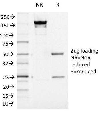 Fig. 2: SDS-PAGE Analysis Purified Aurora B Mouse Monoclonal Antibody (AURKB/1521). Confirmation of Purity and Integrity of Antibody.