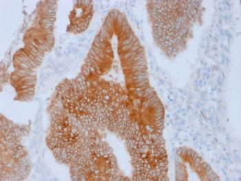 Fig. 1: Formalin-fixed, paraffin-embedded human Colon stained with Aurora B Mouse Monoclonal Antibody (AURKB/1592).